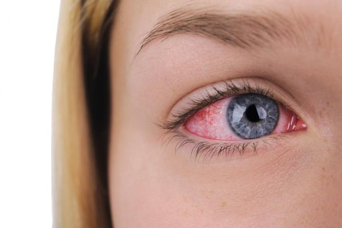 What is Dry Eye Syndrome? How to Treat it?