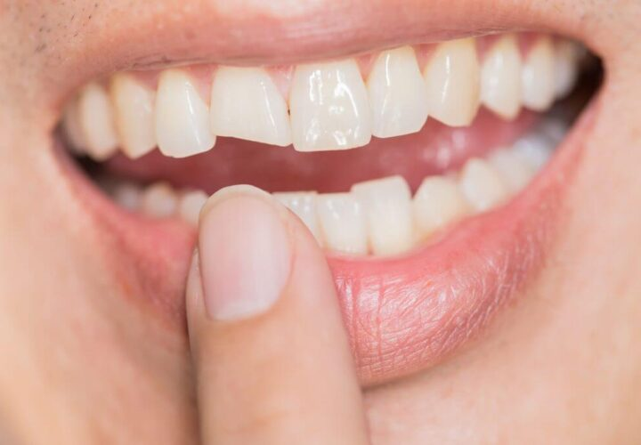 Tips to Fix a Chipped Tooth