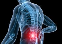 Low back pain – causes and cures