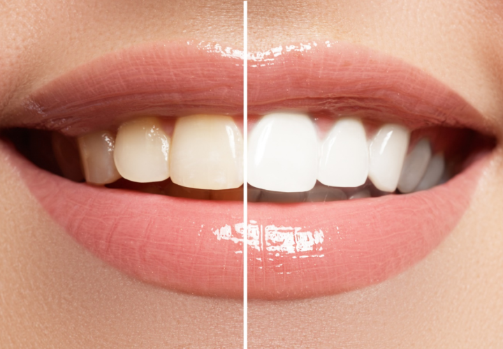 How to Improve Your Smile: The Top Options Explained
