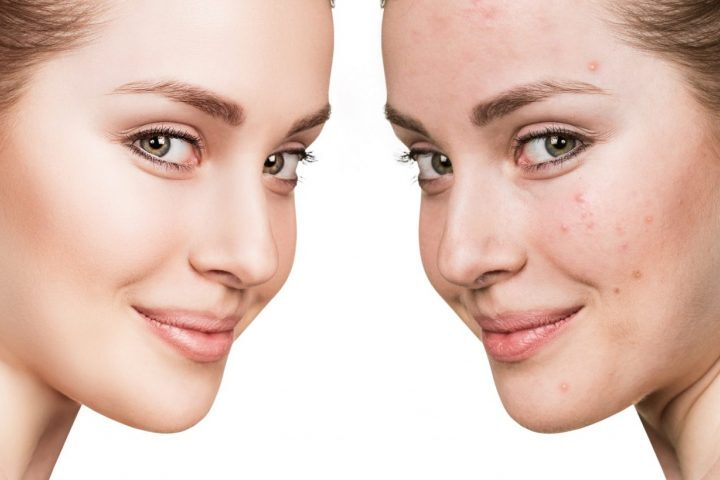 How Do You Choose the Right Acne Pill Treatment to Fight Breakouts?