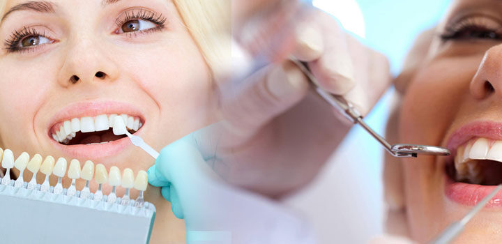 Have Healthy Teeth With the Help of Dental Treatments in Liverpool