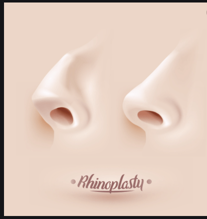 Rhinoplasty: The Guide to this nose surgery