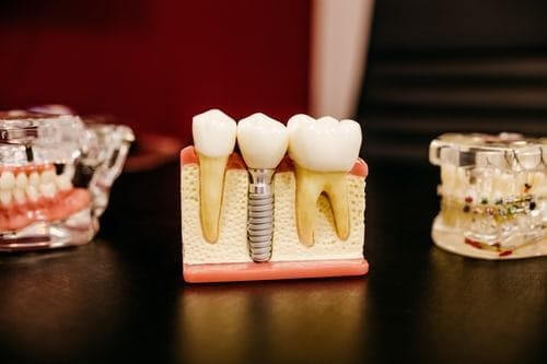 Making a Dental Appointment: How to Know You Need Emergency Dentist Services