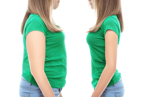 How to Prepare For Your Weight Loss Surgery in Los Angeles?