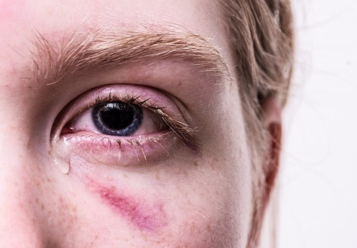 What Constitutes Emergency Eye Care?