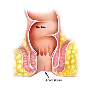 There are many symptoms, including pain, swelling and discharge of pus from the anus. Anal fistula isn't a common condition. It affects 10 percent of the 100,000 people, mainly men. Consult the best Fistula Doctor in Kolkata.