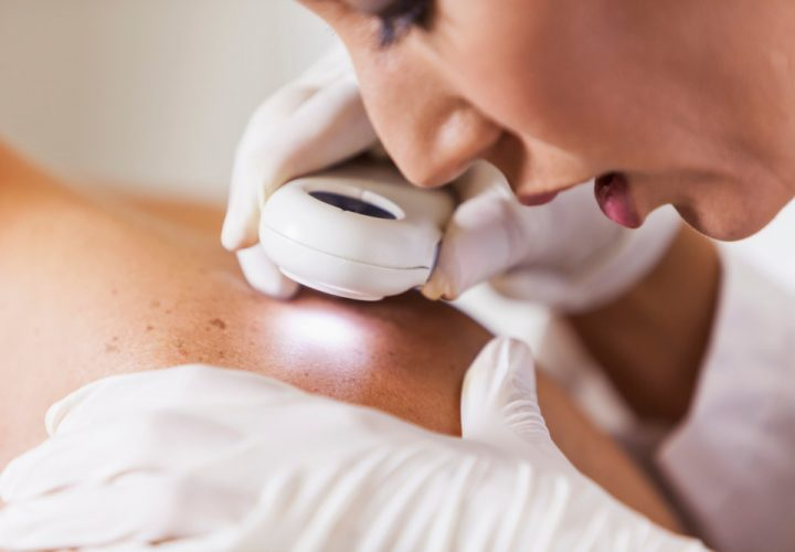 Should you see a dermatologist?